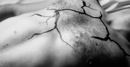 Benjamin Scheuer 'Cure' by Peter Baynton